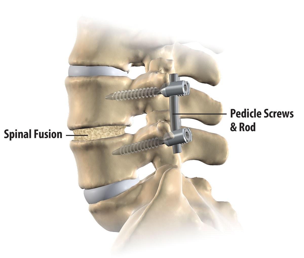 Spinal Fusion Northern VA