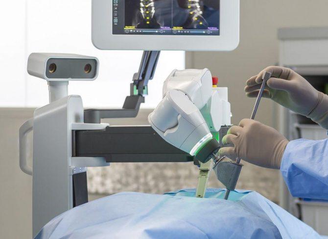 Mazor X Surgical Arm