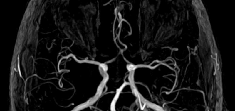 Arteriovenous-Malformation