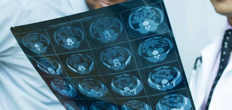 pituitary-tumor