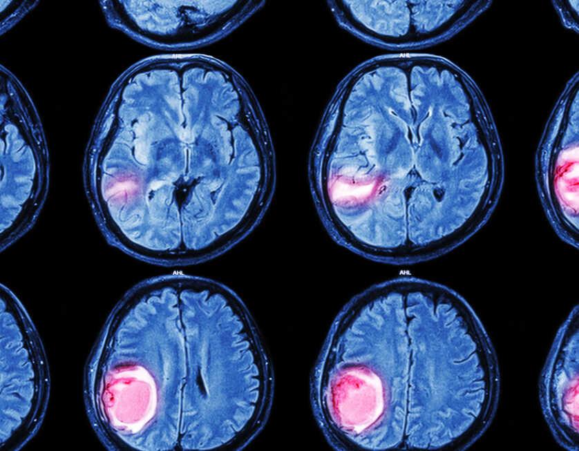 Brian-tumor-Scan