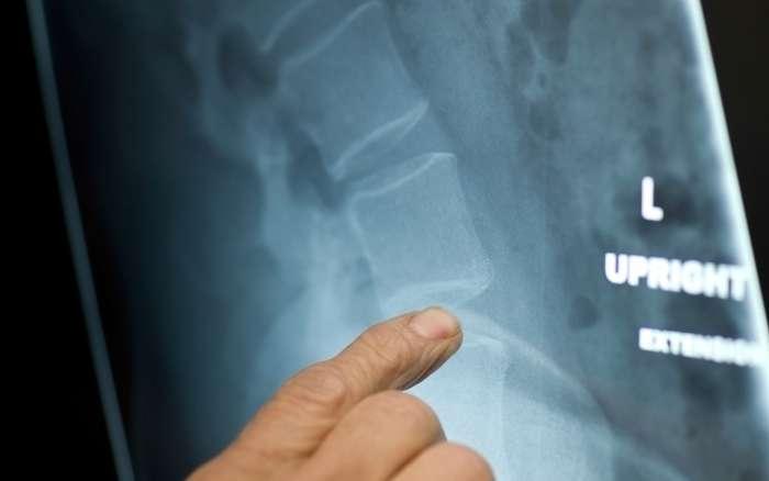 Disc-replacement-surgery-thumbnail